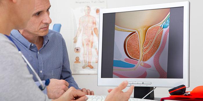 Аблация-рака-простаты-сфокусированным-ультразвуком