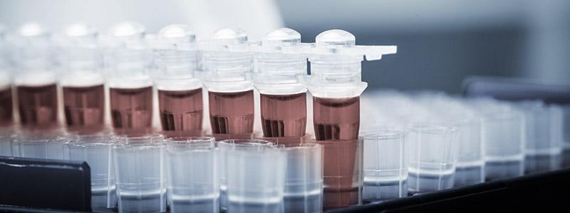 Analiz-krovi-pomojet-opredelit-risk-rezidiva-raka-molochnoi-jelezi