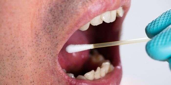 Анализ на ВПЧ выявляет рак горла