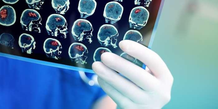 Болезнь Альцгеймера и рак