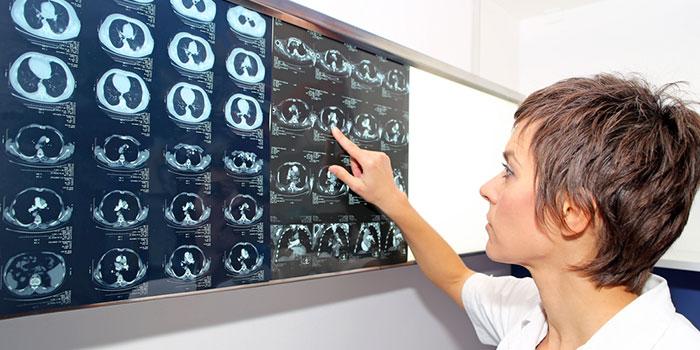 Искусственный-интеллект-прогнозирует-рак-легкого