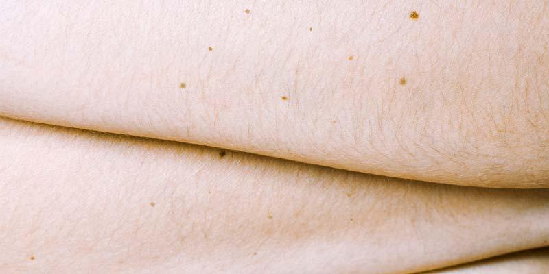 Количество родинок на правой руке поможет предсказать риск меланомы
