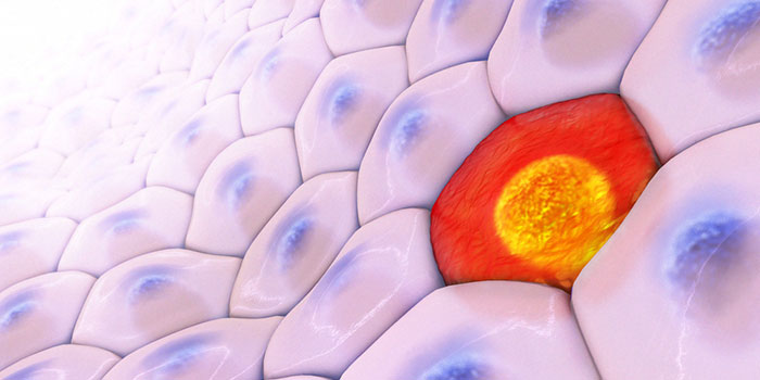 Мутации-и-агрессивность-меланомы