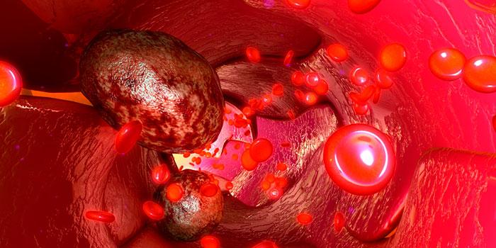 Новая-модель-для-изучения-распространения-рака