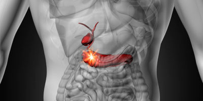 Новая-таргетная-терапия-при-раке-поджелудочной-железы