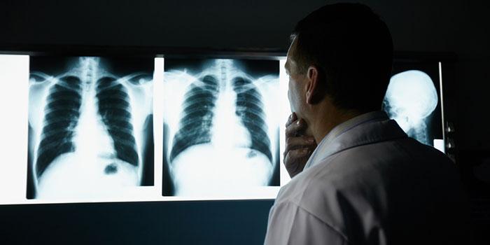 Почему-бывает-рак-легкого-у-некурящих