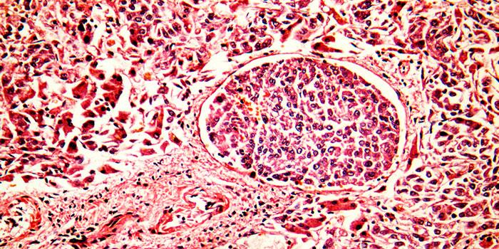 Почему-раковые-клетки-не-стареют