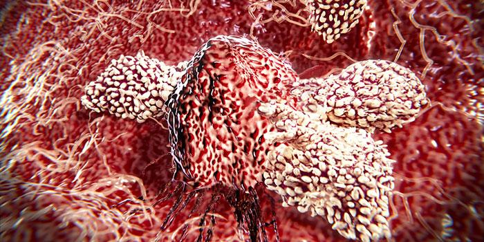 Ремиссия-по-поводу-иммунотерапии-при-раке-легкого