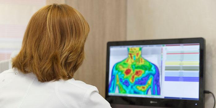 Термография-в-диагностике-рака-молочной-железы