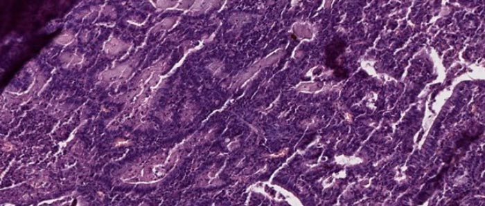 аденокарцинома эндометрия