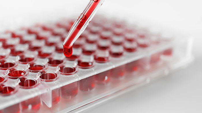 Рак желудка общий анализ крови