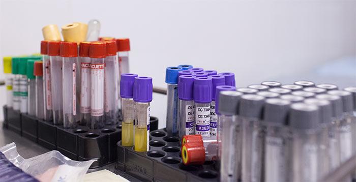Чем повышают гемоглобин больным раком