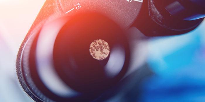 Клинический анализ крови что указывает на рак