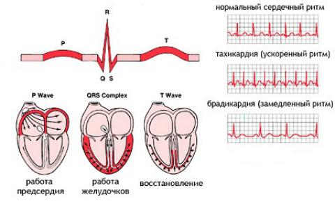 Рча сердца при постоянной аритмии