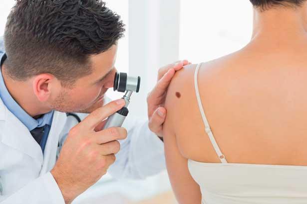 проверка родинок на меланому или рак кожи