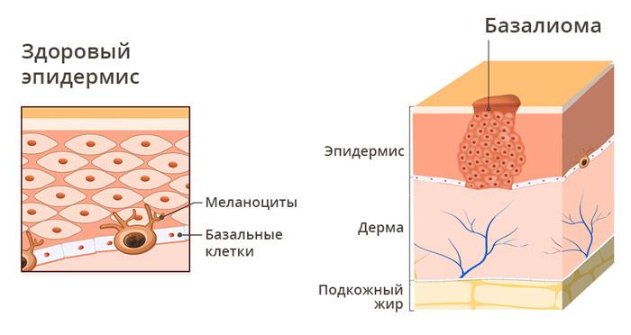 Базальноклеточная карцинома на носу