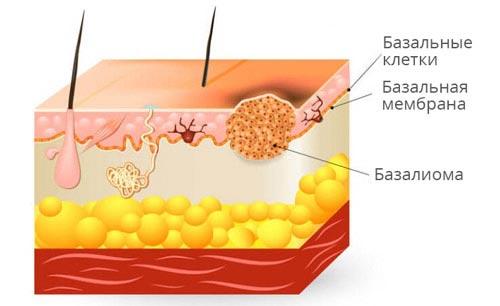 Базалиома кожи лица — опасное новообразование или заболевание, поддающееся лечению?