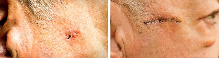 Уход за кожей после удаления базалиомы
