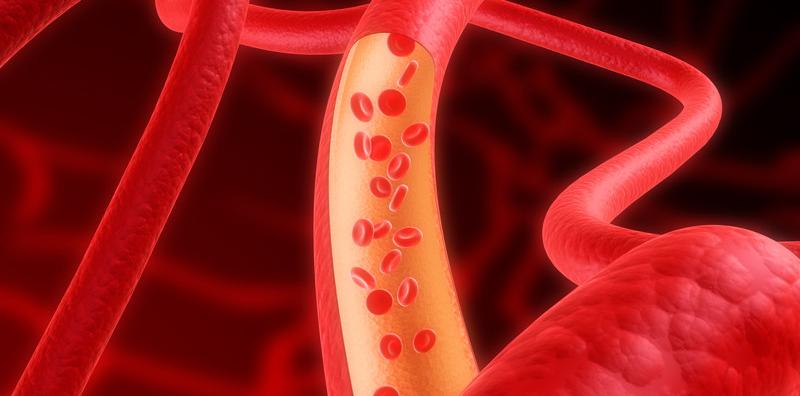 Эмболизация артерий позвоночника
