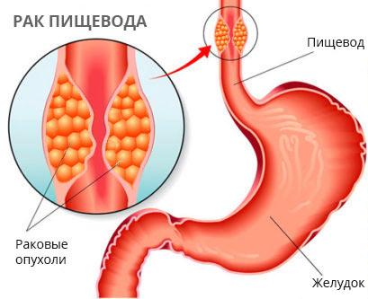 Эндоскопическое лечение рака пищевода и