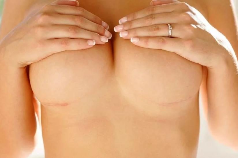 грудные импланты рубец
