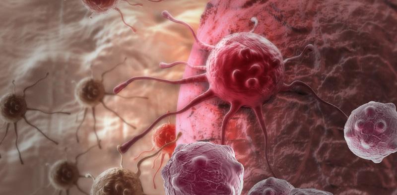 Когда лимфоузлы говорят об онкологии. Как проявляются опухоли и метастазы в лимфоузлах брюшной полости. стадия рака лимфоузлов