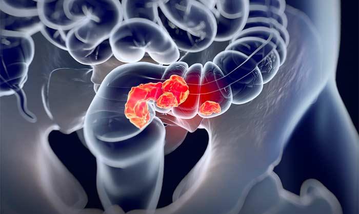 Метастазы в печени, сколько живут при 4 степени рака, стадии || Лечение метастазов рака толстой кишки в печень