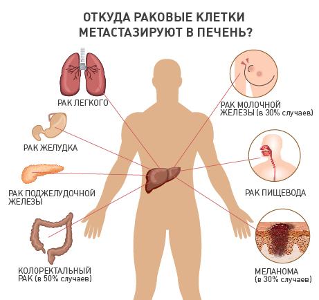 Симптоматическое лечение при раке печени