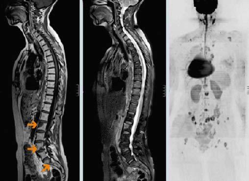 Долго ли живут с раком позвоночника