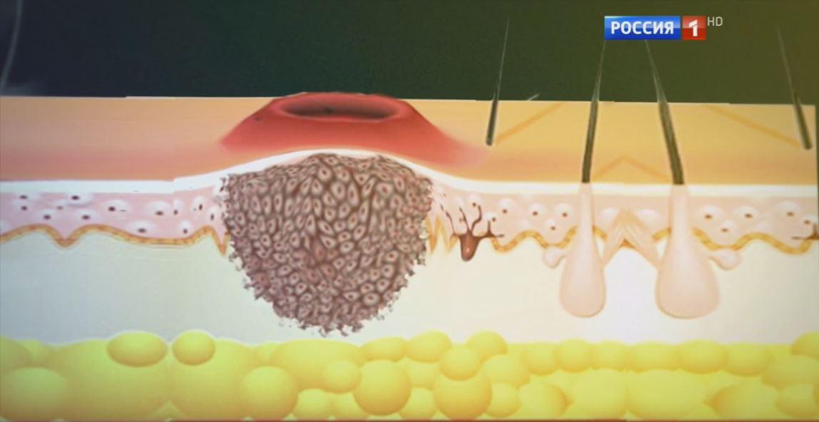 о раке кожи рассказывает онколог