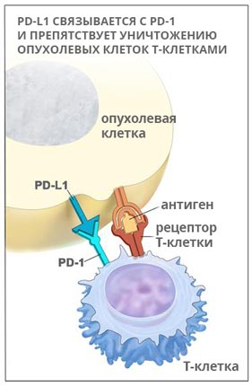 Иммунотерапия рака легких: что нужно знать пациенту