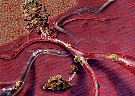 Рак матки и метастазы в позвоночник симптомы thumbnail