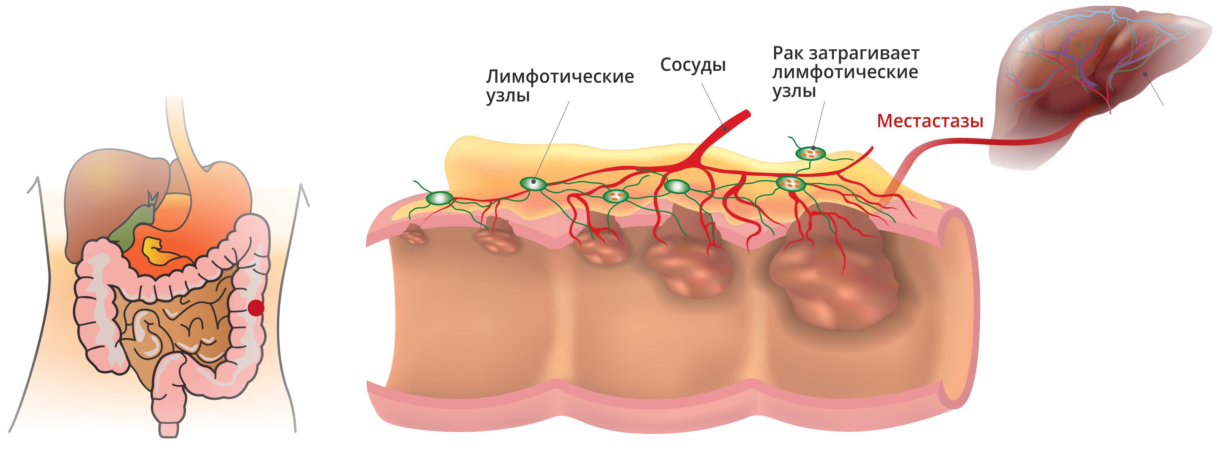Как выглядит рак прямой кишки