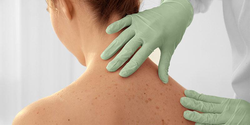 рак-кожи-повышает-риски-др-рака