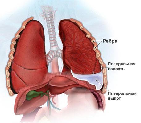 Какие симптомы при жидкости в легких