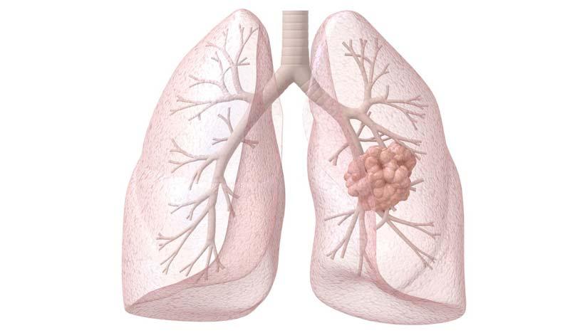 Рак легких - симптомы и признаки, стадии, лечение рака легких