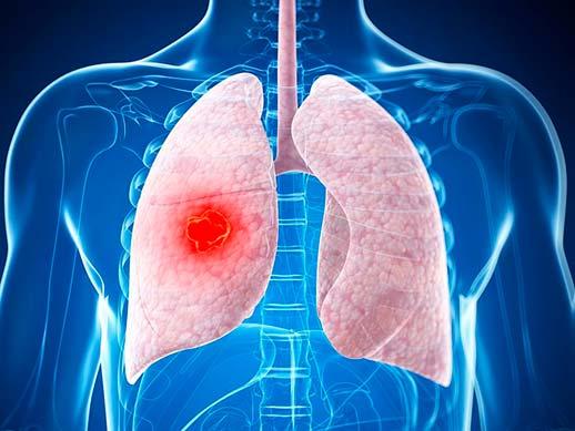 Слабость при онкологии 4 стадии