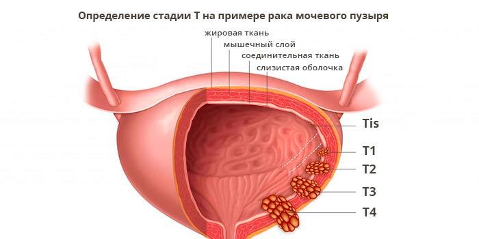 rak-mochevogo-puzyrya