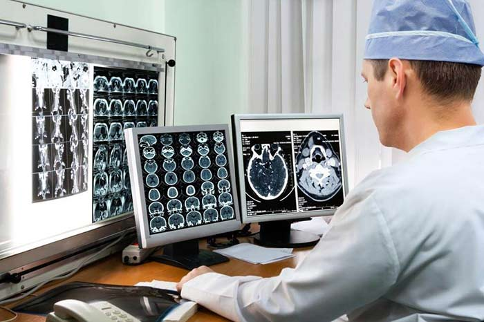 Лучевая терапия при раке головного мозга