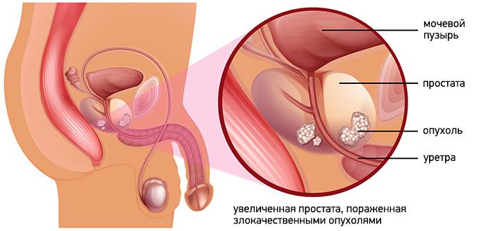 Метастазы 4 степени
