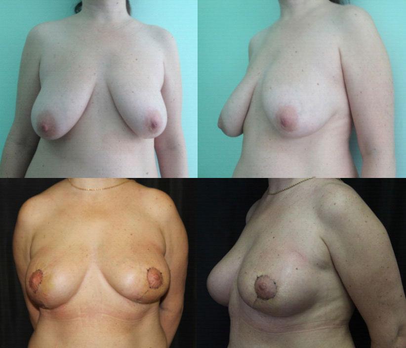 Лучевая терапия при раке молочной железы после операции цены в москве — LiveAcademy