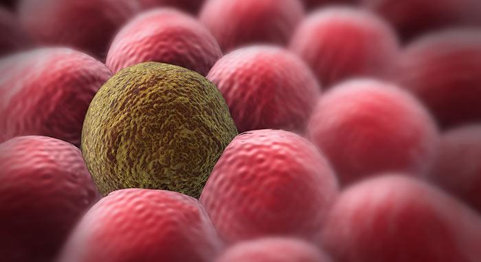 Карцинома мягких тканей