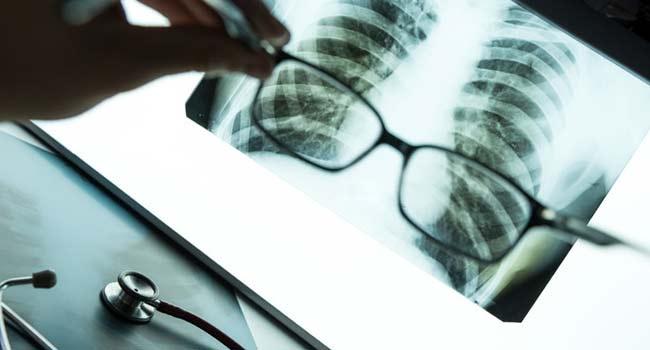 рентген-диагностика легких