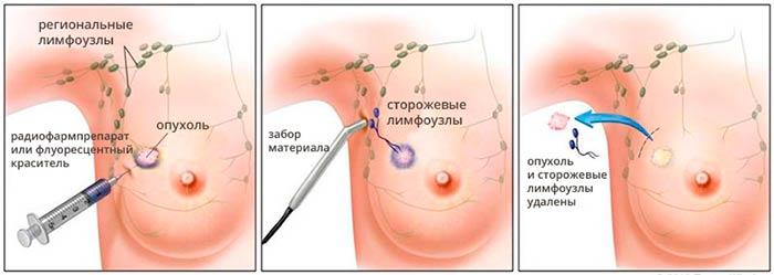sentinel-biopsia