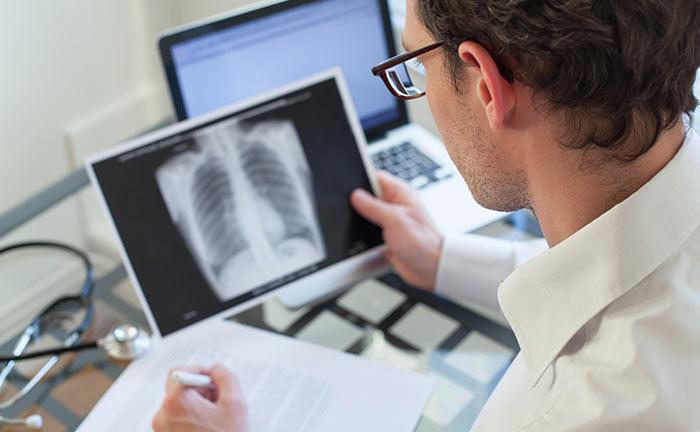 Лечение мелкоклеточного рака легких 4 стадия