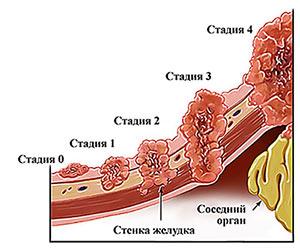 Рак желудка 4 стадии с асцитом thumbnail