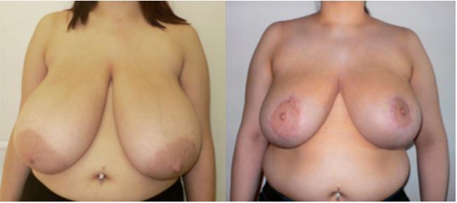 уменьшение груди пластика